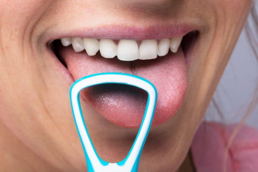 Die 10 besten Zungenreiniger – Bakterien und Belag den Kampf ansagen