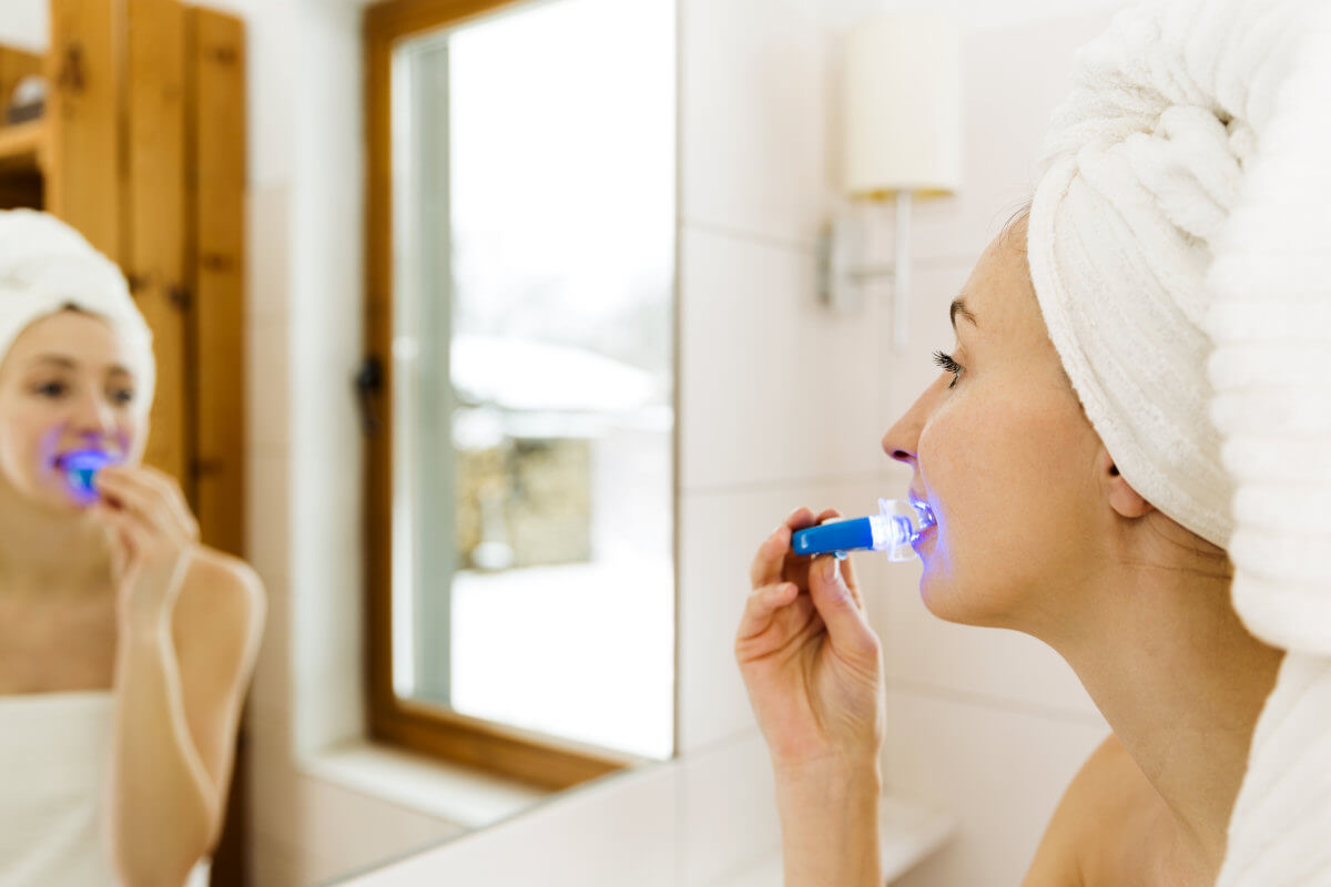Zahnaufhellung mit Zahnaufhellungs Set Zuhause