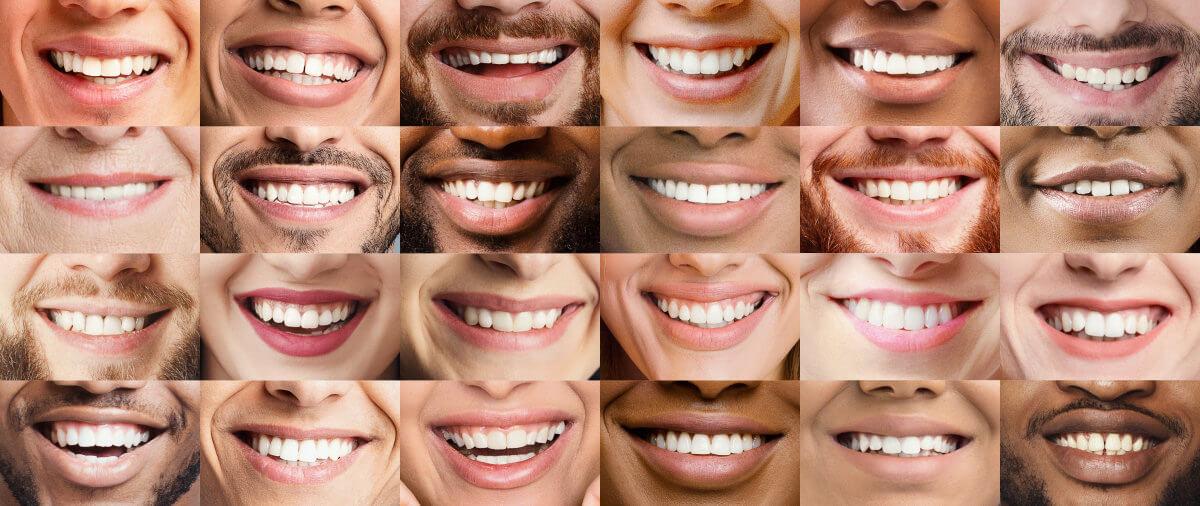 Zahntyp bestimmen Finde heraus, welche Zahnpasta gut für dich ist