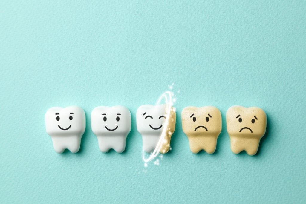 7 Gründe, warum dich weiße Zähne glücklich machen