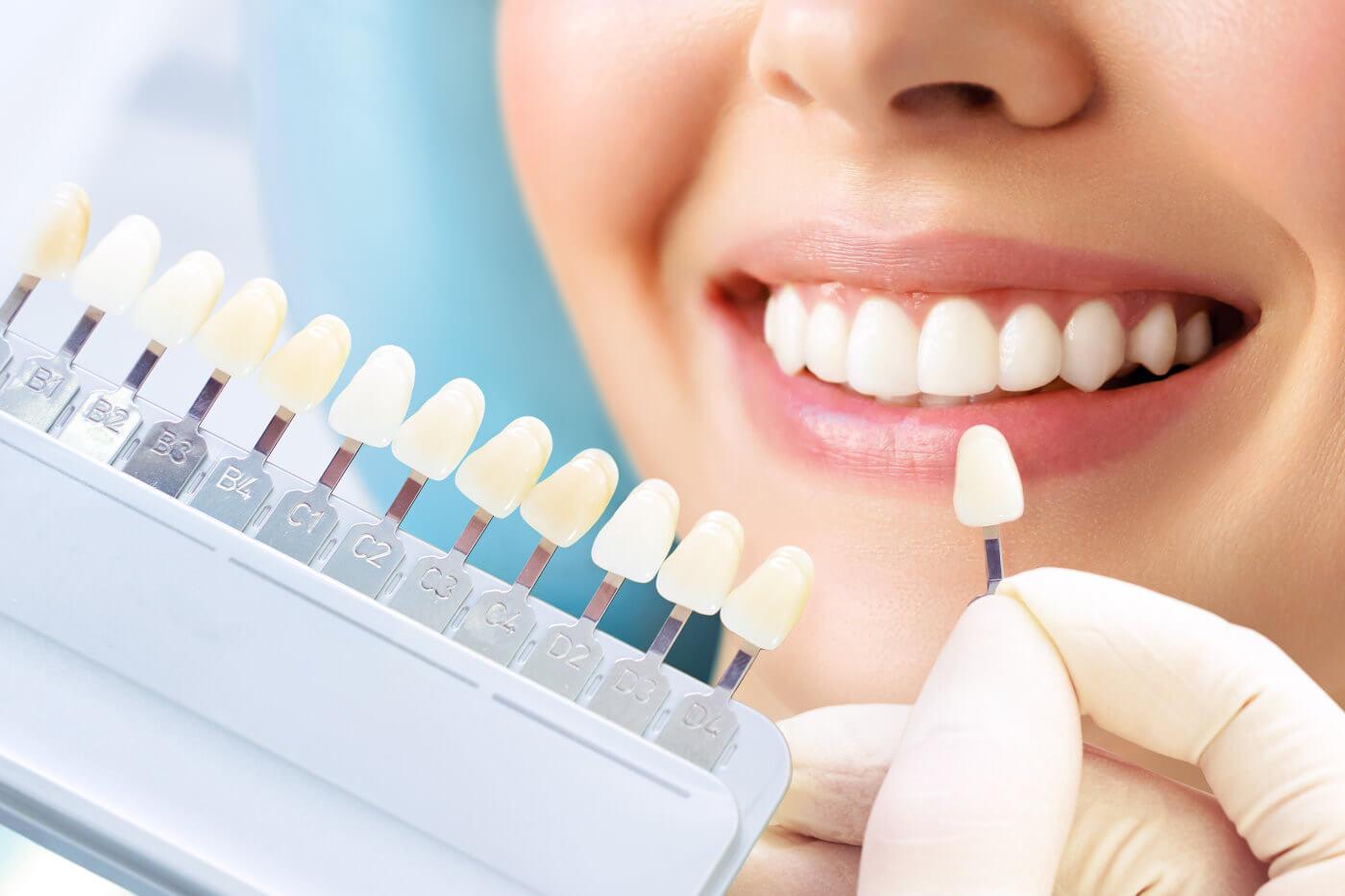 Wirkung von zahnaufhellenden Zahnpasten im Vergleich zu ähnlichen Produkten