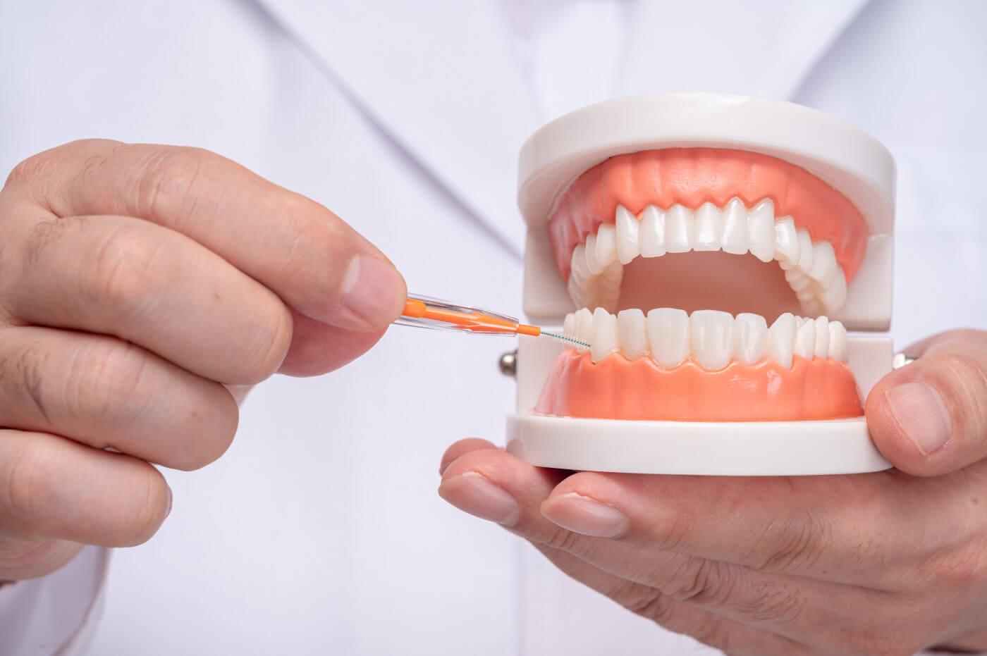 Zahnzwischenräume reinigen mit Interdentalbürsten